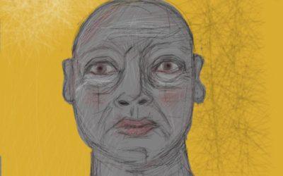 Chemo head